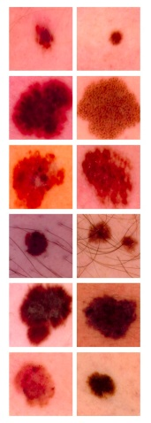 Extracts of skin lesions. Melanoma (left column) and benign skin lesions (right column) appear very similar, making the task of automated screening very challenging.